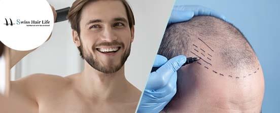 Haartransplantation in der Schweiz
