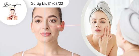 Laserbehandlung gegen Akne