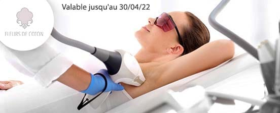 Epilation laser femme